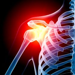 Shoulder_arthritis