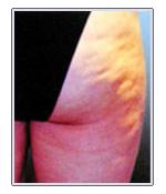 Buttocks2_Before